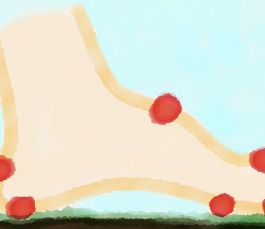 Skizze: Fuß mit Blasen